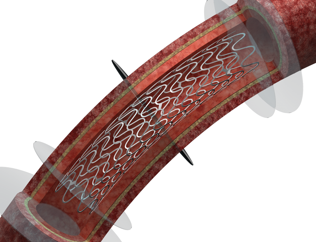 Aspen_Stage2_STENT_NOPLAQUE#2_SLICES_PNG