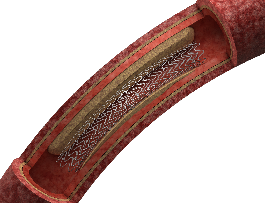 Aspen_Stage2_STENT_PLAQUE